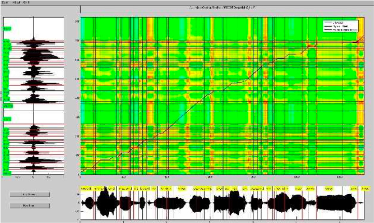 voice alignment between the narrator and lolita's future voice using Dynamic Time Warping